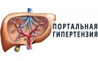 Лечение портальной гипертензии у взрослых и детей