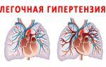 Лечение и признаки легочной гипертензии