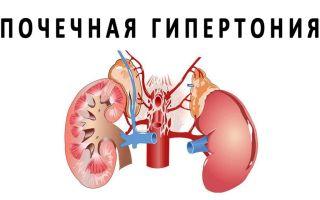 Причины и симптомы почечной гипертензии