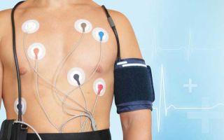Как проводят СМАД (суточный мониторинг артериального давления), результаты