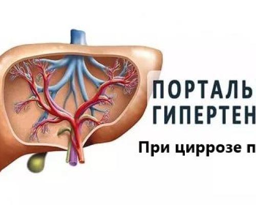 Методы лечения портальной гипертензии при циррозе печени