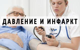 Изменения давления при инфаркте миокарда