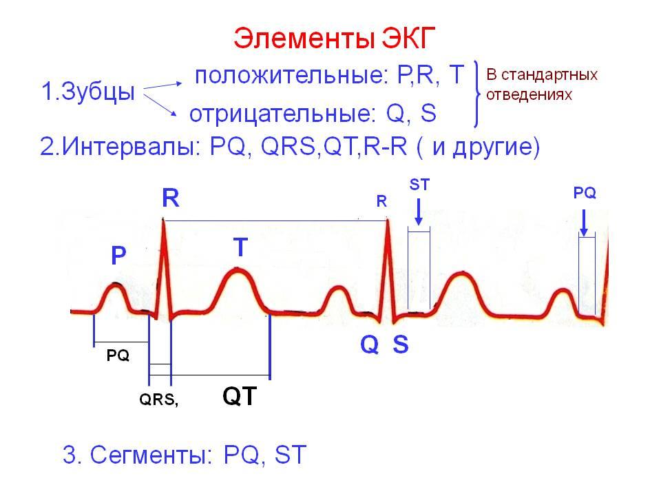 Как расшифровывать ЭКГ