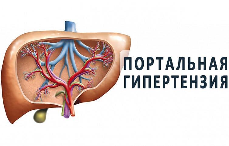 Синдром портальной гипертензии при циррозе печени, у детей, его лечение