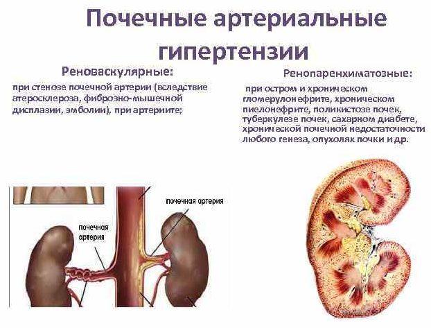 Почечная гипертензия