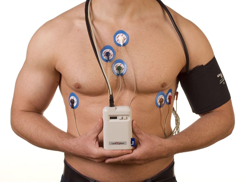 Суточное мониторирование артериального давления