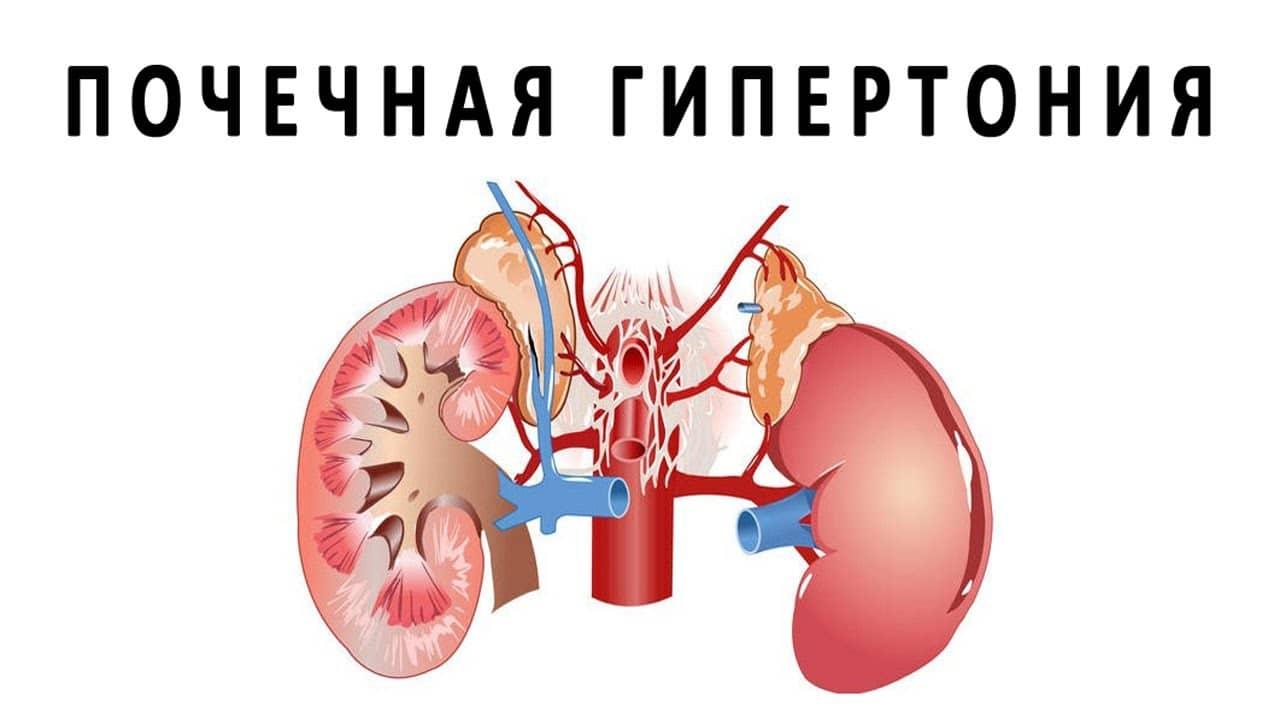 Почечная гипертензия механизм развития диагностика и лечение болезни