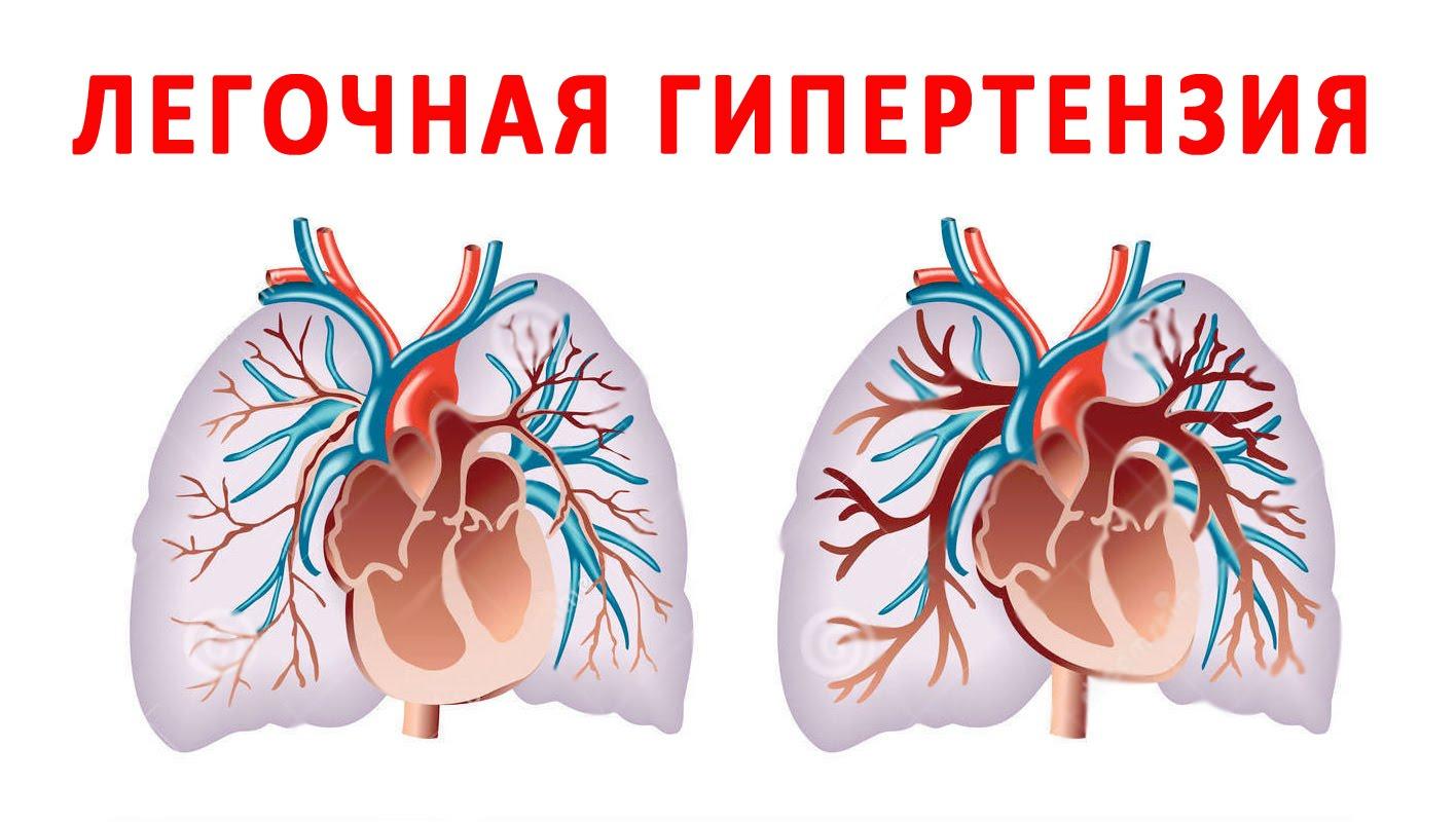 Повышение давления в легочной артерии