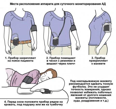 Изображение - Холтер артериального давления smad_mesto_raspolozheniya_pribora