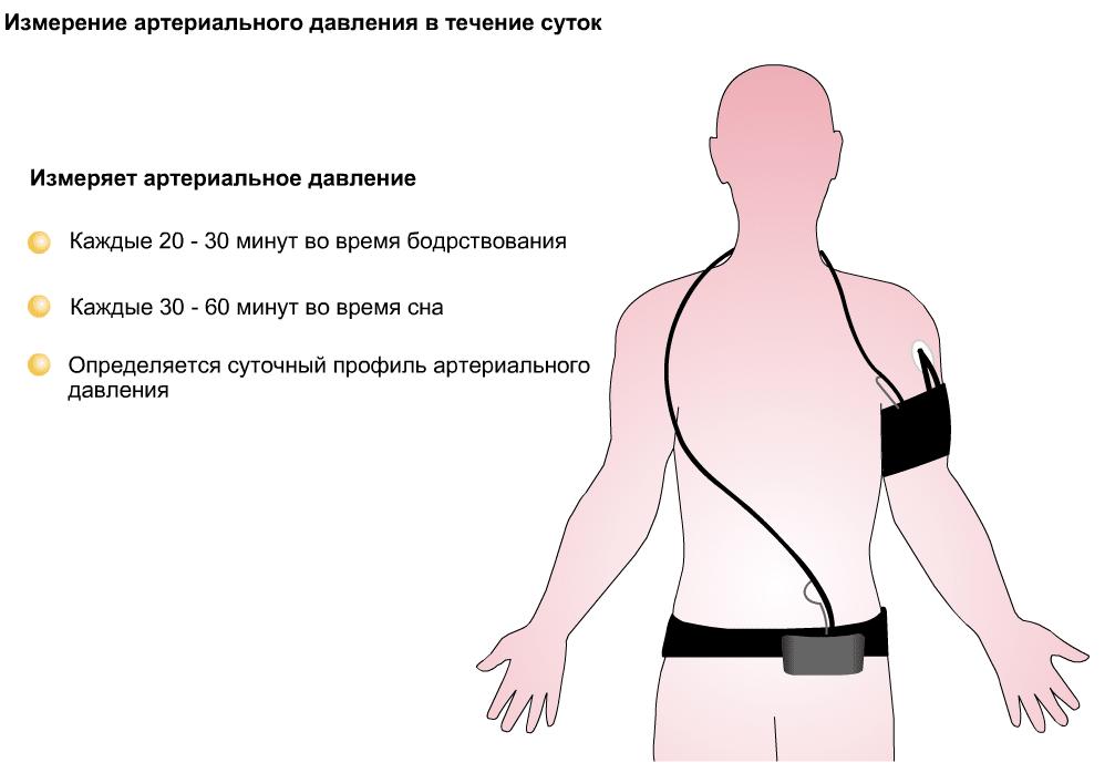Изображение - Прибор для мониторинга артериального давления 0005-007-