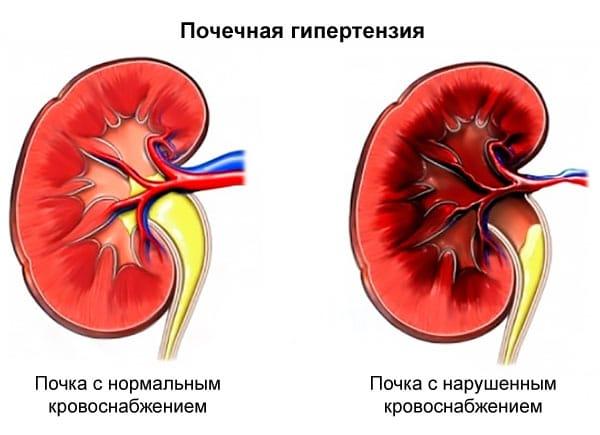 Состояние почек при нефрогенной артериальной гипертензии