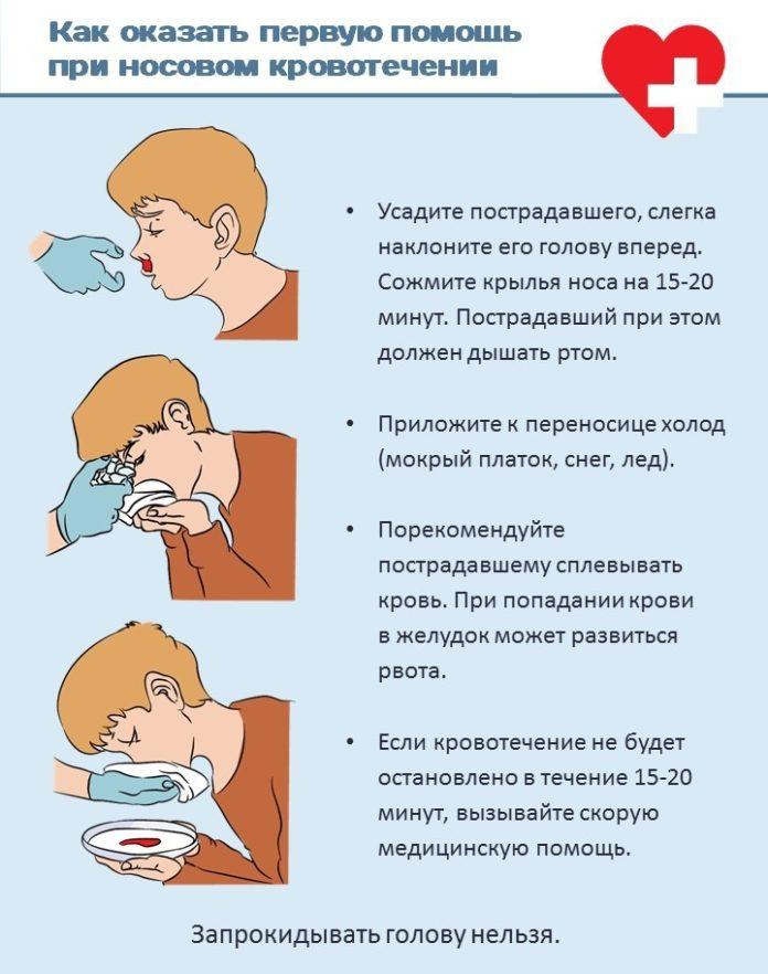 Как остановить кровь с носа