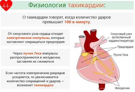Что такое тахикардия