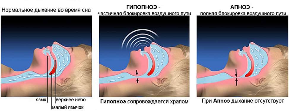 Апноэ при учащенном пульсе
