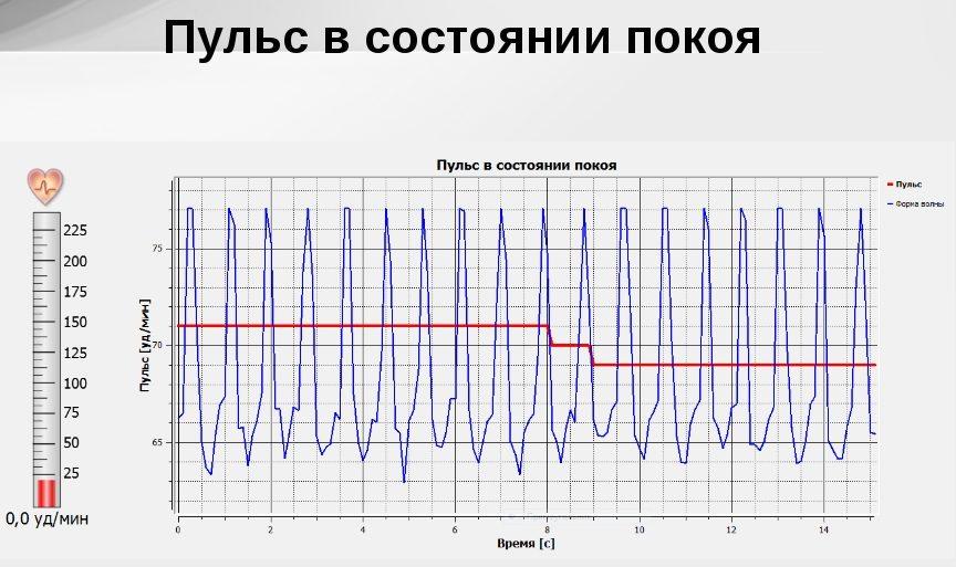 График пульса в состоянии покоя