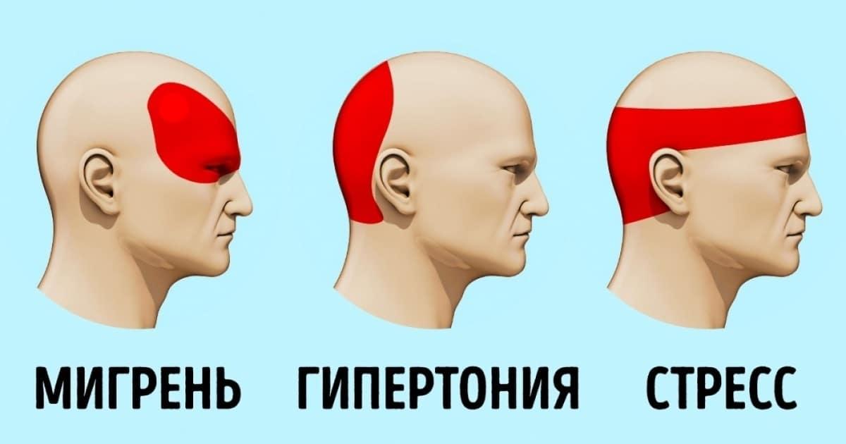 Где болит голова при гипертонии