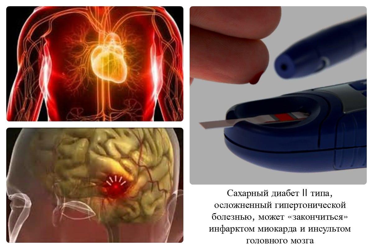 Зачем лечить гипертонию