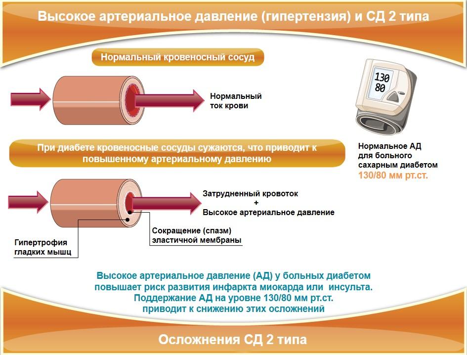 Гипертония при СД 2 типа